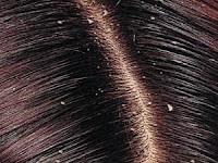 Cara Menghilangkan Ketimbe Pada Rambut Dengan Mudah