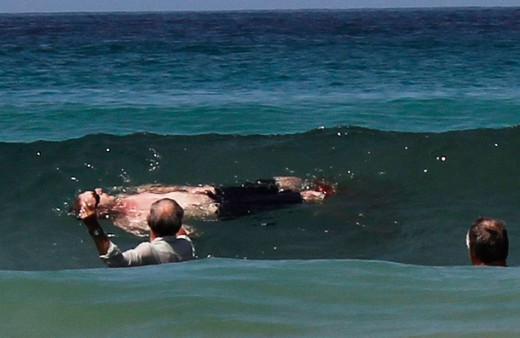 News Images Shark Attacks Humans Man Pictures