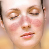Pengobatan Alternatif Lupus