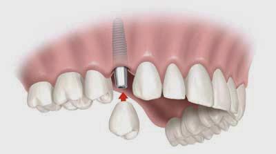 http://www.dentalimplantsclinicindia.com