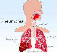 Cara tradisional mengobati radang paru paru  Cara tradisional mengobati radang paru paru yang alami ampuh manjur dan mujarab mengobati radang paru ( pneumonia ) sampai sembuh secara alami dengan bertahap - Radang paru-paru atau pneumonia