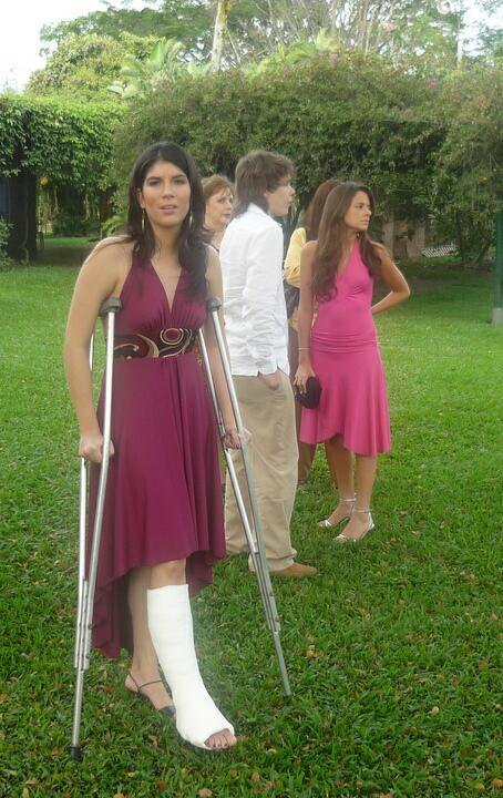 Pictures of brides with leg casts