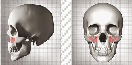 Koreksi tulang pipi dengan implan di Wonjin