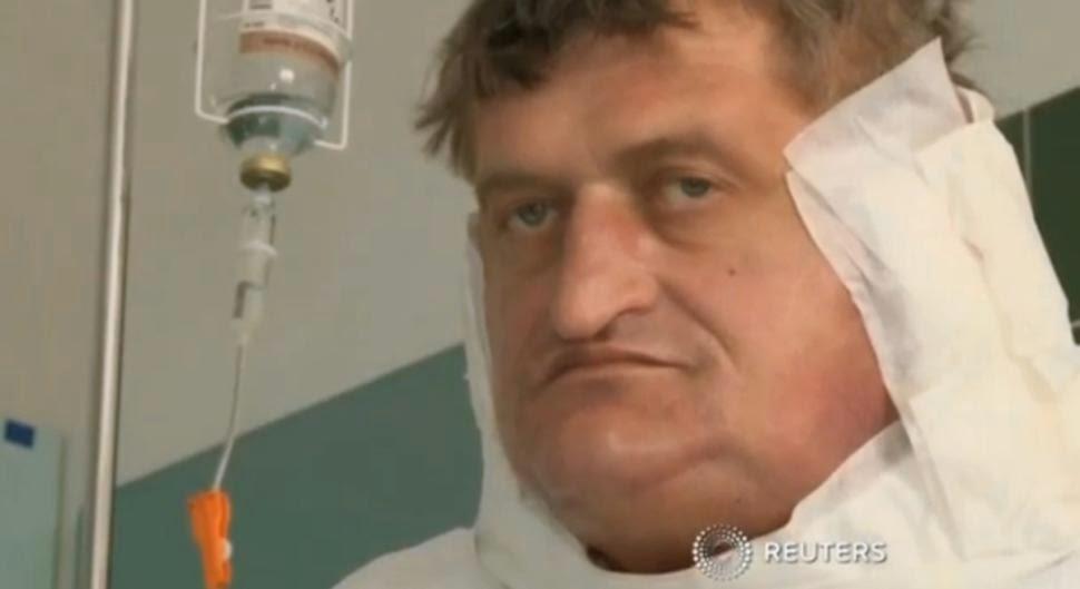 WAJAH Stefan Zoleik selepas pembedahan.