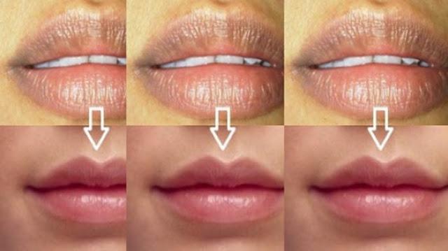 Cara Kembalikan Gusi Dan Bibir Gelap Agar Menjadi Merah Muda Wajib Baca