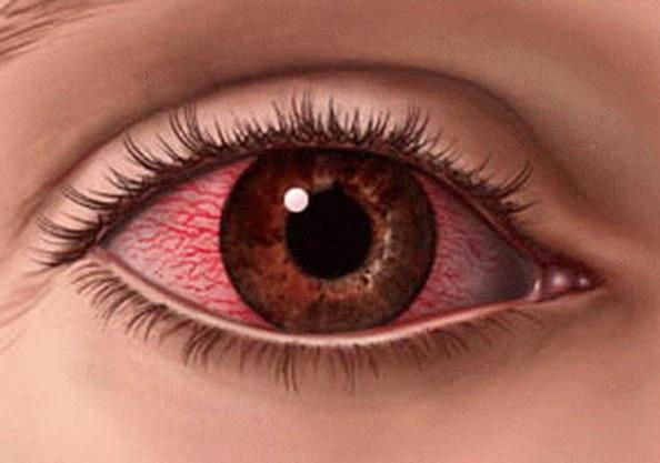 Jual Obat Herbal Untuk Mencegah Sakit Mata Akibat Radiasi Komputer/TV dll