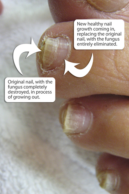 how to cut your toenails to not have hang nails