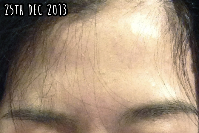 how to clear congested forehead