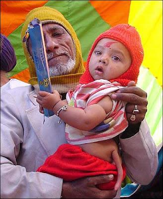 Bebé nasce com cauda no Paquistão