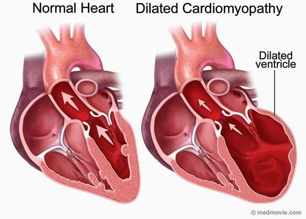 obat jantung bengkak alami