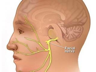 Fisioterapia e a Paralisia Facial