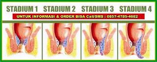 http://obatwasirhemoroidambeien.blogspot.com/2015/08/terkena-wasir-stadium-3.html