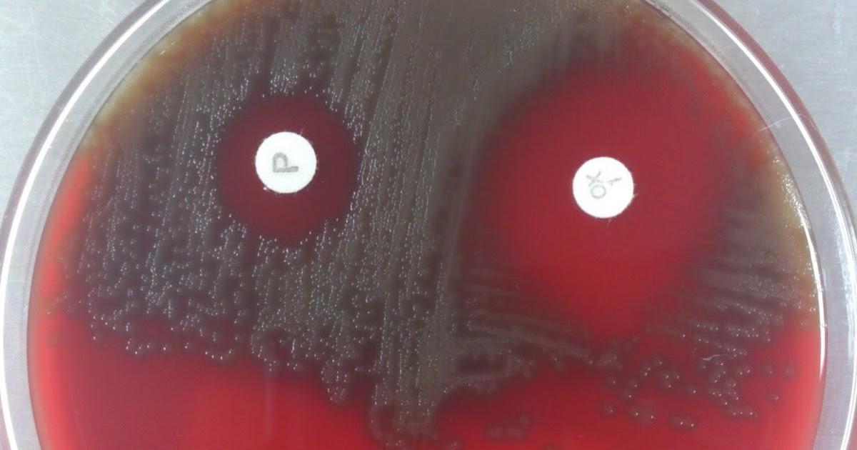 Para t cnicos de laboratorio prueba de la optoquina - Cabeceras pintadas en la pared ...