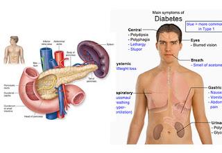 Ciri ciri penyakit diabetes dan gejala penyakit diabetes serta cara mengatasi diabetes