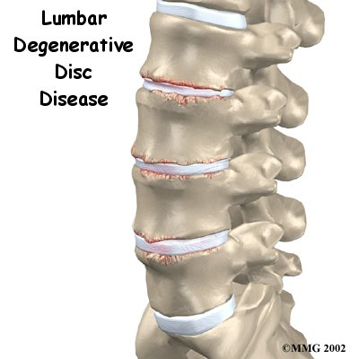 10 Symptoms of Degenerative Disc Disease