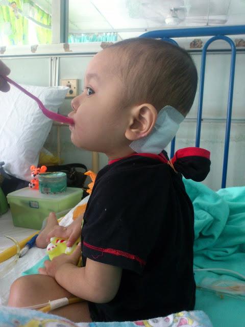 Derita pesakit Short Bowel Syndrome (SBS)