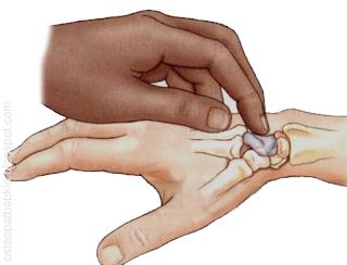 основание третьей пястной кости, врач соскальзывает с этого возвышения проксимально на головчатую кость