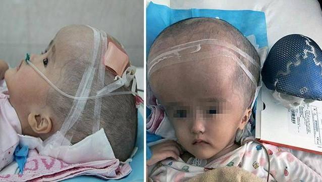 طفلة صينية تصبح أول شخص في العالم بجمجمة اصطناعية ...