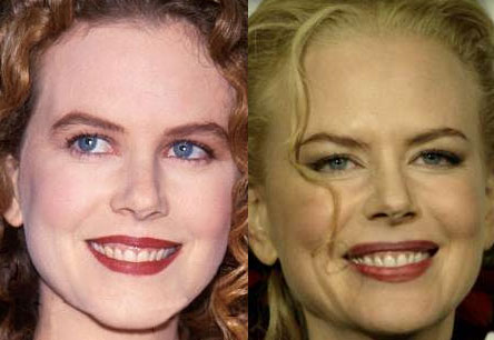 Claire Danes Plastic Surgery on Nicole Kidman Plastic Surgery   Before   After Pictures 2012