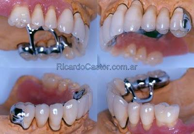 protesis fija dental combinada con protesis removible cromo cobalto