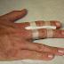 4 passos para determinar a gravidade de uma fratura no dedo
