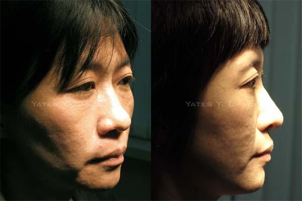微晶瓷注射隆鼻, Radiesse nose augmentation, 趙彥宇