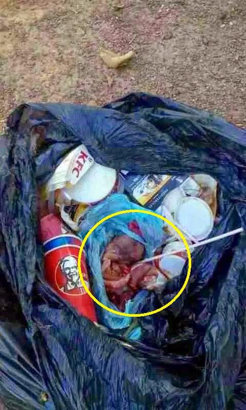 Janin Dibuang Didalam Sisa Sampah KFC