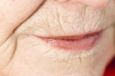 Home remedies for wrinkles around lips
