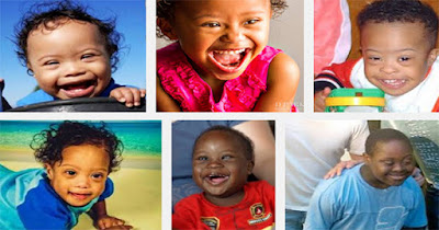 African American Children With Down's Syndrome
