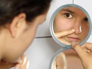 Bagaimana cara menghilangkan komedo di hidung atau di wajah secara alami dengan cepat tanpa efek samping untuk kecantikan muka