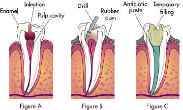 how to draw out an abscess tooth