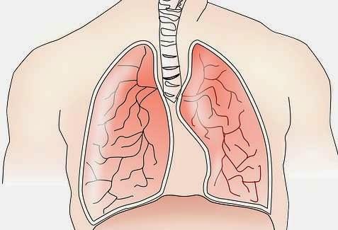 Macam-macam Penyakit Paru-paru dan Gejalanya
