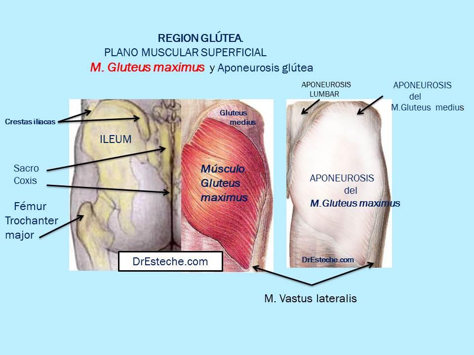 Dr. Esteche   Cirugía Plástica de Glúteos   Buttocks surgery: REGION ...