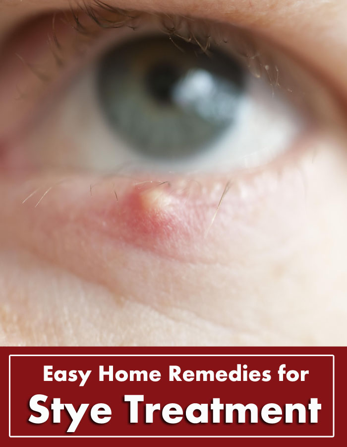 Easy Home Remedies for Stye Treatment