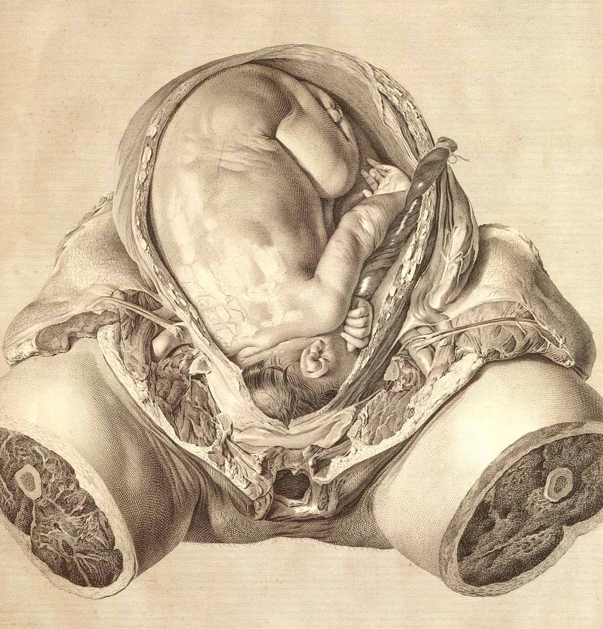 1774 the Anatomy of the Human Gravid Uterus