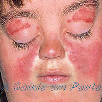 Lupus Eritematoso Sistêmico.