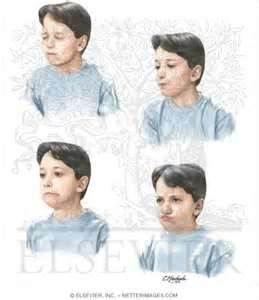 A Touretters Blog Symptoms Of Tourette Syndrome