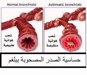 علاج حساسية الصدر المصحوبة بالبلغم مع الدكتور امير صالح