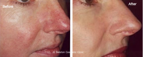 laser for spider veins on face