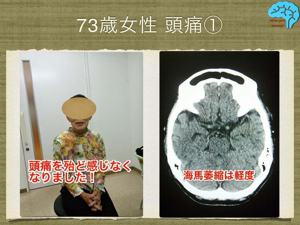 ウインタミンで頭痛の治療