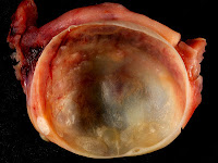 OVARIAN_CYSTS