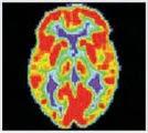 Toma de una tomografía en un cerebro normal