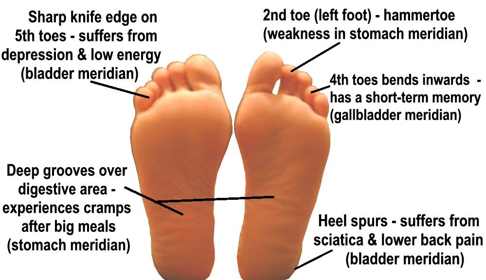 Bottom of foot pain near toes