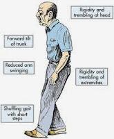 Obat Untuk Penyakit Parkinson