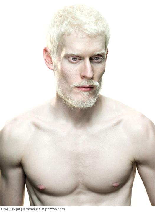 Hot Albino Guys