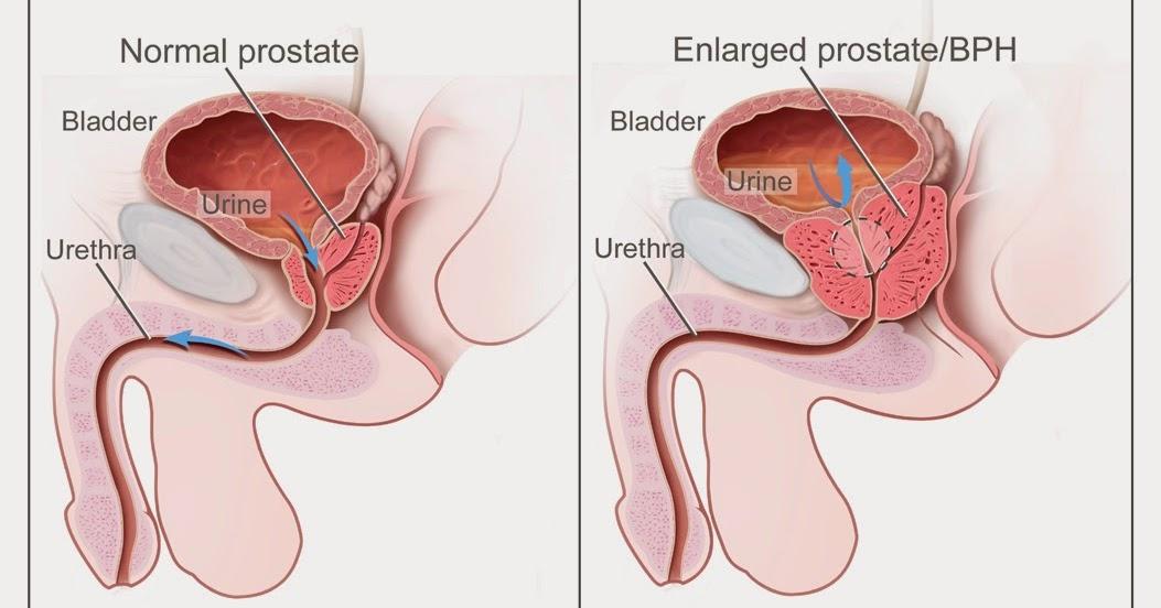 prostatemassage