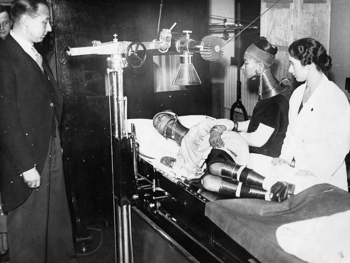Doctors examining a Padaung woman.