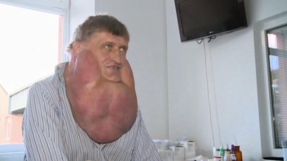 Um homem na Eslováquia teve um tumor 6 kg removido de seu rosto.