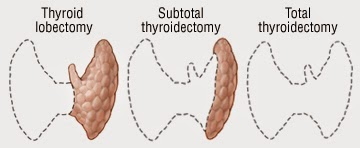 http://www.laparoscopic-general-surgery.com/head&neck-surgery-thyroidectomy.html