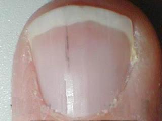 nail psoriasis - hemorrhage